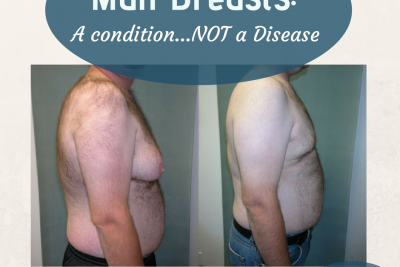 Male Breasts…Resolving the Hormone Imbalance